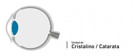 Specialisti del Cristallino - Cataratta